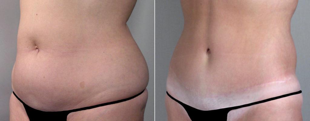 Растянутый живот похудение