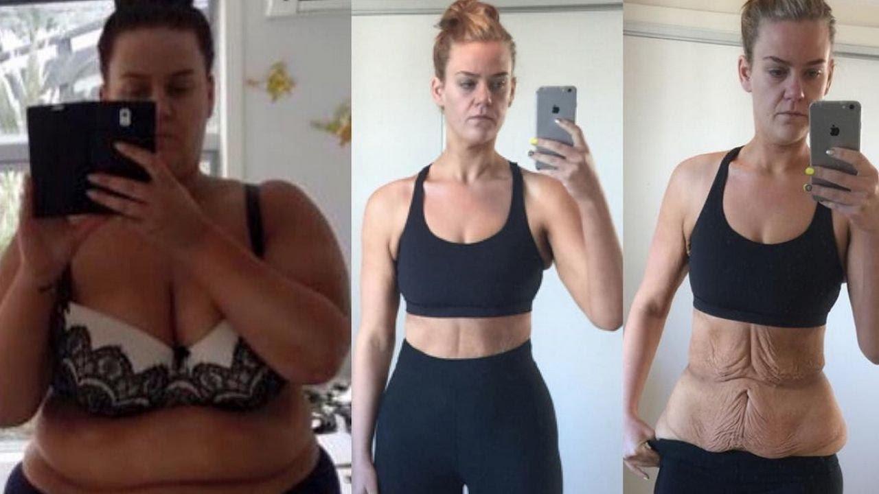 Как убрать обвисший после похудения живот у мужчин и женщин: способы и профилактические меры