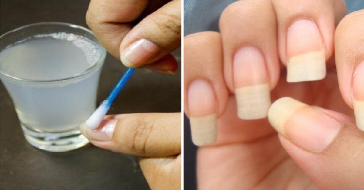Как выращивать ногти за 2 дня в домашних условиях?