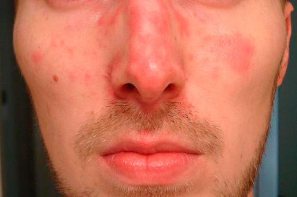 Покраснения на лице после алкоголя