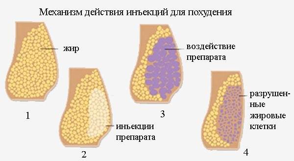 Уколы в живот для похудения