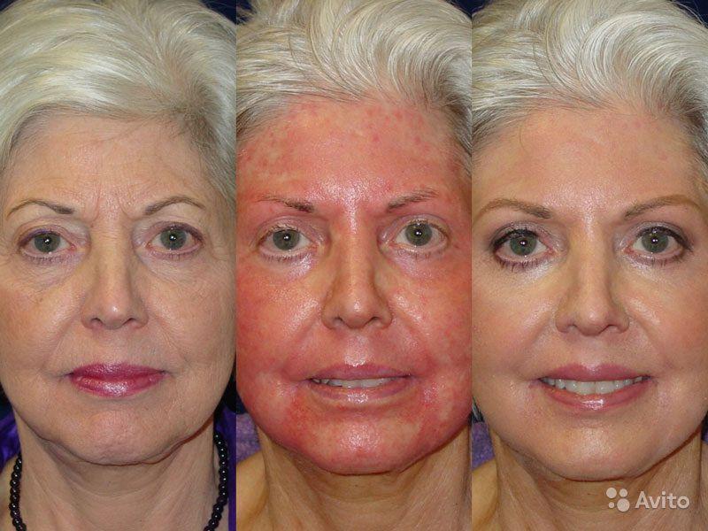 О причинах красного лица у женщины: что делать при покраснении кожи