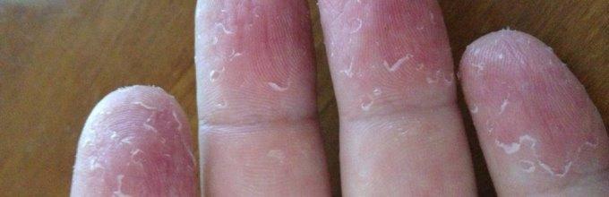 Облупляется кожа на пальцах рук