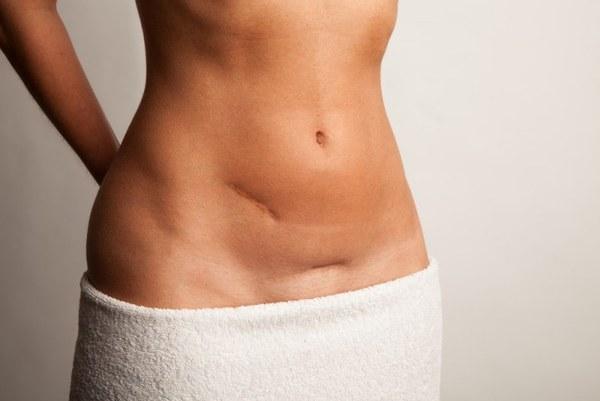Как похудеть после кесарева сечения? Как убрать живот