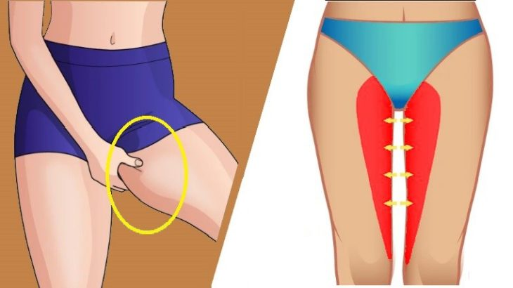 Как убрать жир с ляшек: быстро избавиться в домашних условиях от лишнего слоя с внутренней стороны между ног, как сжечь за короткий срок девушке?