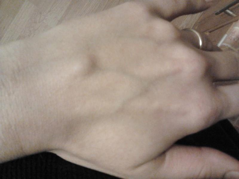 Узелки под кожей на руках