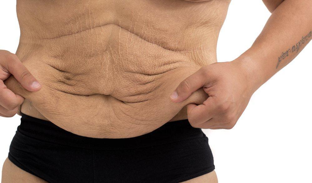 кожа во время похудения