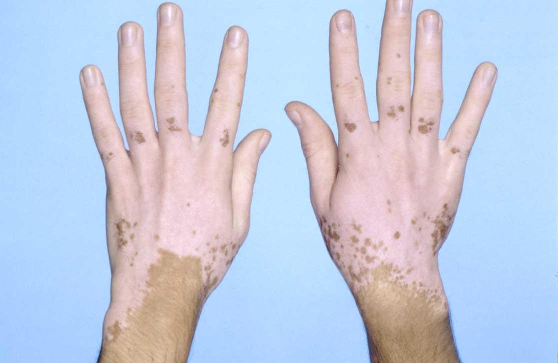 Пигментные пятна на руках почему появляются как избавиться?