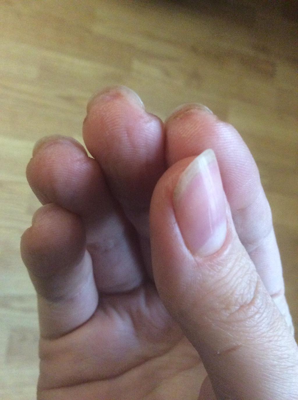 Трещины кожи на пальцах рук возле ногтей