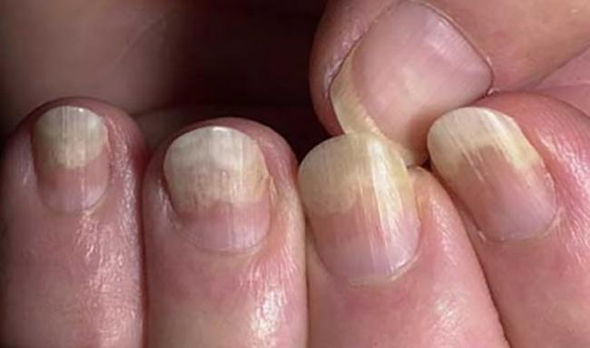 Отходит ноготь на пальце руки 15