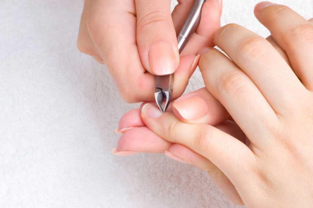 От чего появляются заусенцы на пальцах рук