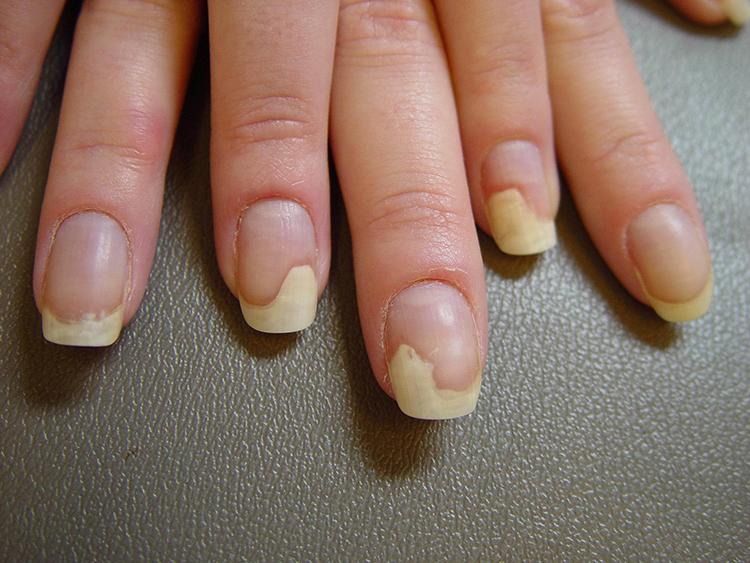 Ногти на руках отходят от кожи: причины и лечение отслоения ногтей