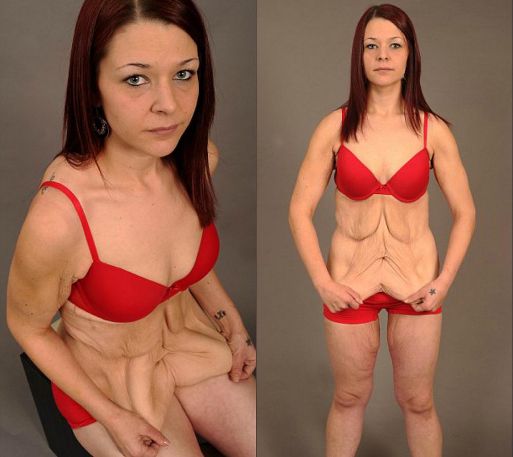 При похудении сильно уменьшается грудь